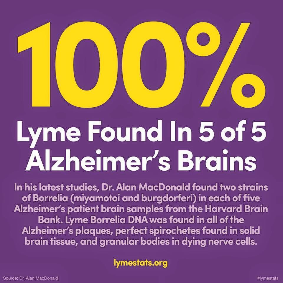 sensation-alzheimerdisease-lyme-claim